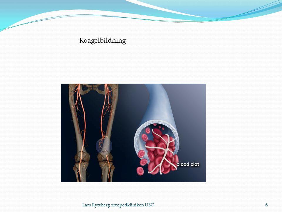 Koagelbildning 6Lars Ryttberg ortopedkliniken USÖ