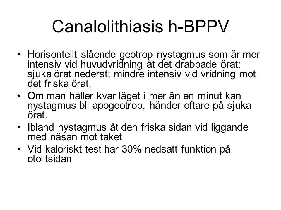 Canalolithiasis h-BPPV •Horisontellt slående geotrop nystagmus som är mer intensiv vid huvudvridning åt det drabbade örat: sjuka örat nederst; mindre intensiv vid vridning mot det friska örat.