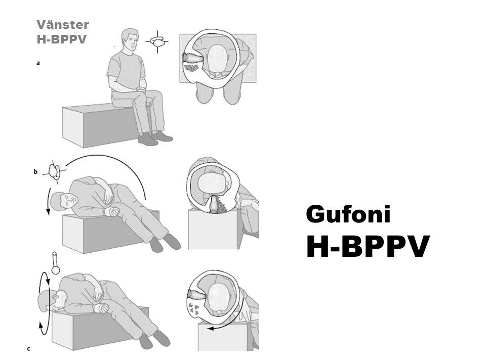 Gufoni H-BPPV Vänster H-BPPV