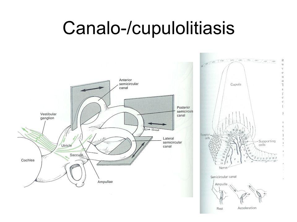 Canalo-/cupulolitiasis
