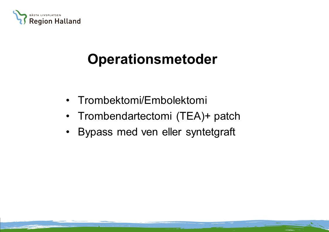 Operationsmetoder •Trombektomi/Embolektomi •Trombendartectomi (TEA)+ patch •Bypass med ven eller syntetgraft