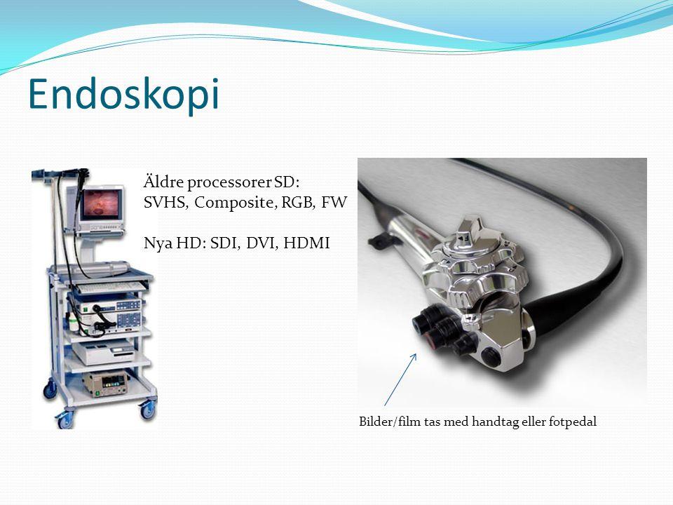 Bilder/film tas med handtag eller fotpedal Endoskopi Äldre processorer SD: SVHS, Composite, RGB, FW Nya HD: SDI, DVI, HDMI