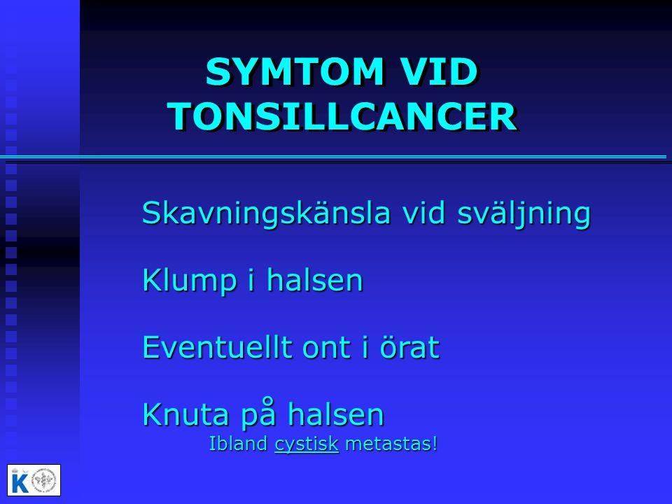 SYMTOM VID TONSILLCANCER Skavningskänsla vid sväljning Klump i halsen Eventuellt ont i örat Knuta på halsen Ibland cystisk metastas!