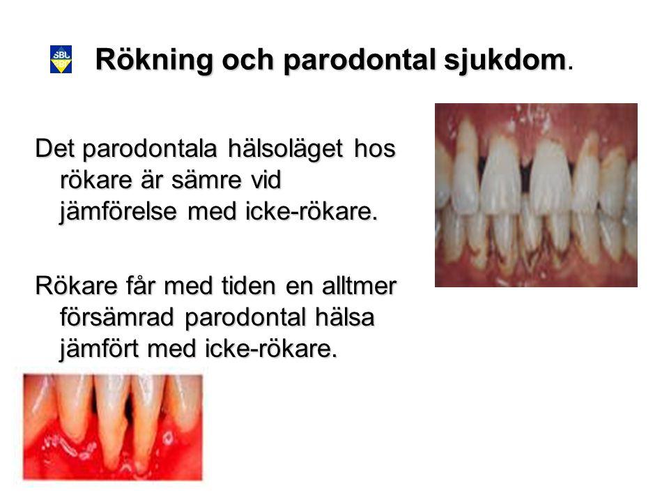 Rökning och parodontal sjukdom Rökning och parodontal sjukdom. Det parodontala hälsoläget hos rökare är sämre vid jämförelse med icke-rökare. Rökare f