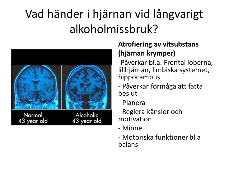 Vad händer i hjärnan vid långvarigt alkoholmissbruk? Atrofiering av vitsubstans (hjärnan krymper) -Påverkar bl.a. Frontal loberna, lillhjärnan, limbis