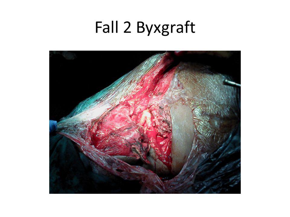 Fall 2 Byxgraft