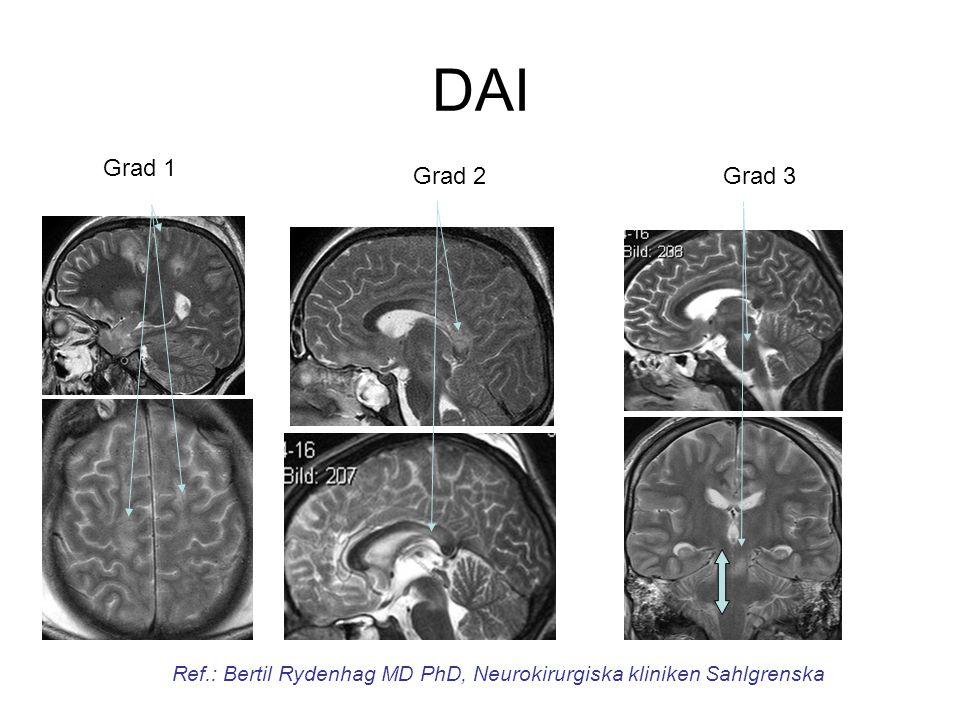 Grade 2 Grade 1 DAI Grade 3 Grad 1 Grad 2Grad 3 Ref.: Bertil Rydenhag MD PhD, Neurokirurgiska kliniken Sahlgrenska