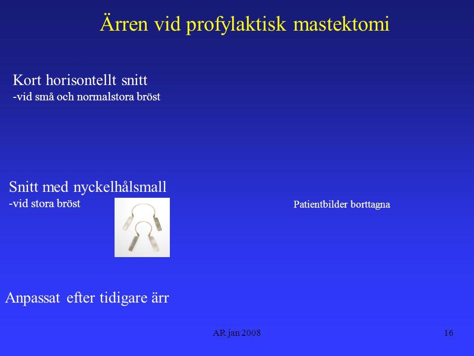 AR jan 200816 Ärren vid profylaktisk mastektomi Kort horisontellt snitt -vid små och normalstora bröst Anpassat efter tidigare ärr Snitt med nyckelhålsmall -vid stora bröst Patientbilder borttagna