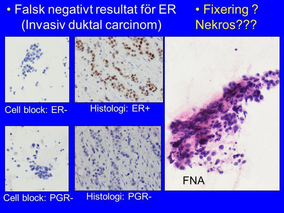 • Falsk negativt resultat för ER (Invasiv duktal carcinom) FNA Cell block: ER- Histologi: ER+ Cell block: PGR- Histologi: PGR- • Fixering ? Nekros???