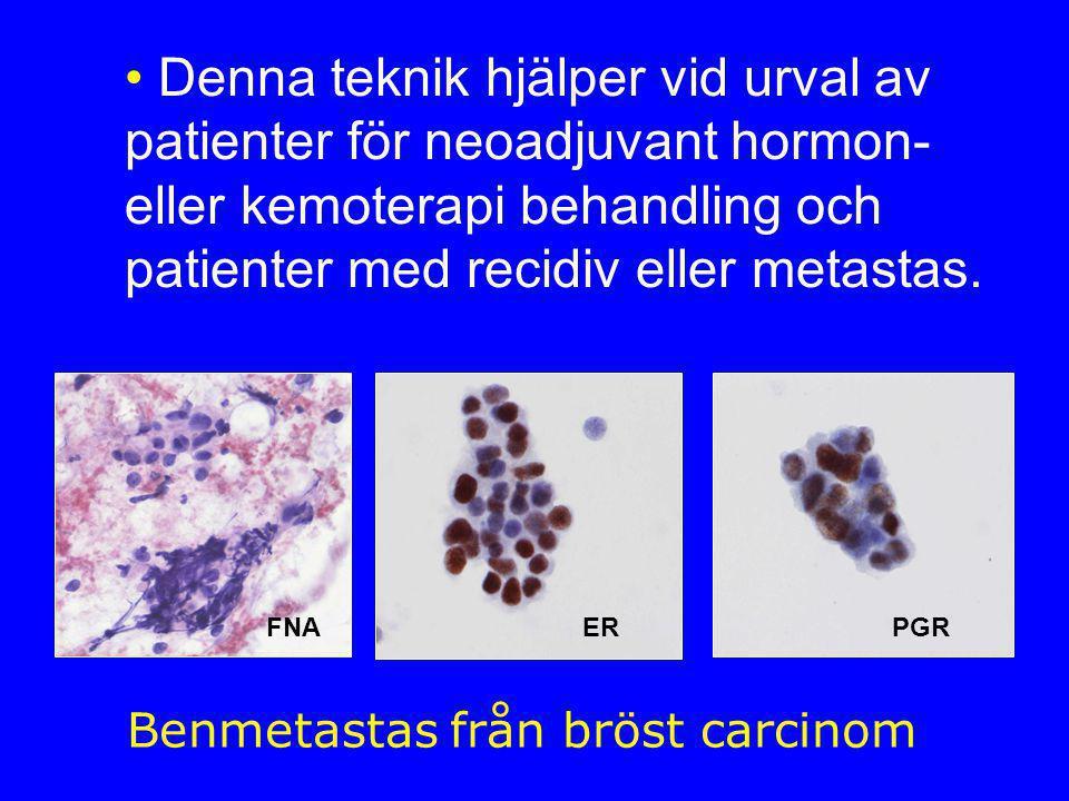 Benmetastas från bröst carcinom FNAERPGR • Denna teknik hjälper vid urval av patienter för neoadjuvant hormon- eller kemoterapi behandling och patienter med recidiv eller metastas.
