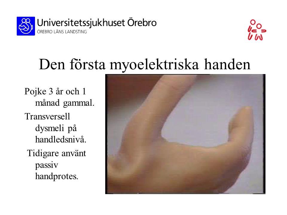 Den första myoelektriska handen Pojke 3 år och 1 månad gammal. Transversell dysmeli på handledsnivå. Tidigare använt passiv handprotes.