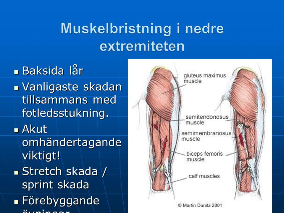  Baksida lår  Vanligaste skadan tillsammans med fotledsstukning.