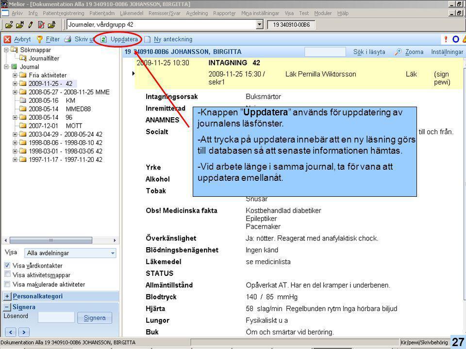 """27 -Knappen """"Uppdatera"""" används för uppdatering av journalens läsfönster. -Att trycka på uppdatera innebär att en ny läsning görs till databasen så at"""