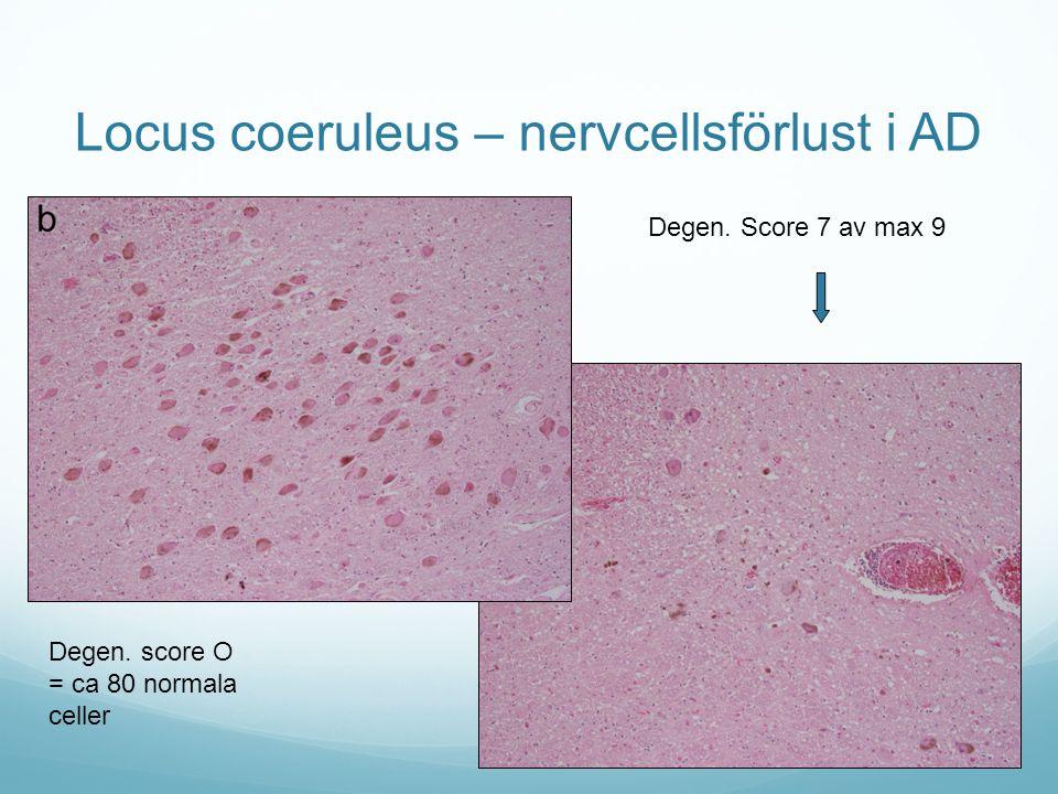 Locus coeruleus – nervcellsförlust i AD Degen. Score 7 av max 9 Degen. score O = ca 80 normala celler