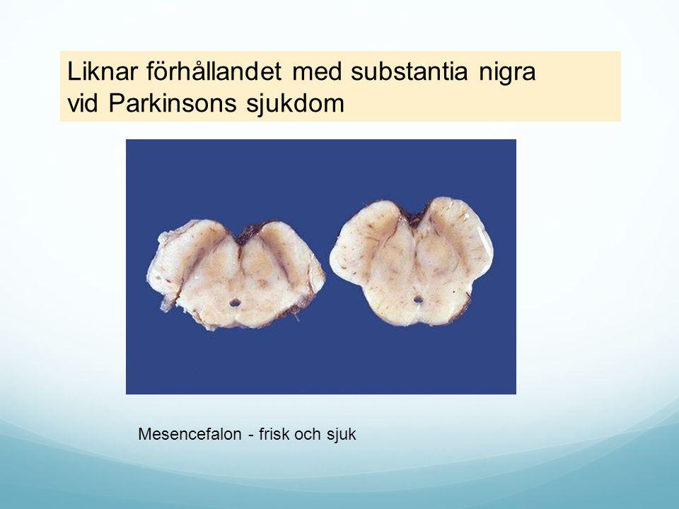 Mesencefalon - frisk och sjuk Liknar förhållandet med substantia nigra vid Parkinsons sjukdom