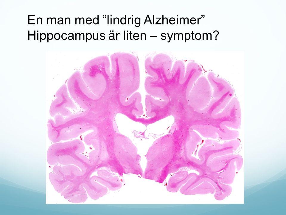 """En man med """"lindrig Alzheimer"""" Hippocampus är liten – symptom?"""