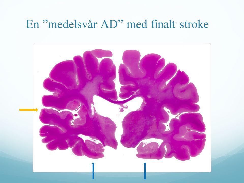 """En """"medelsvår AD"""" med finalt stroke"""