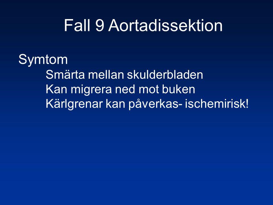 Fall 9 Aortadissektion Symtom Smärta mellan skulderbladen Kan migrera ned mot buken Kärlgrenar kan påverkas- ischemirisk!