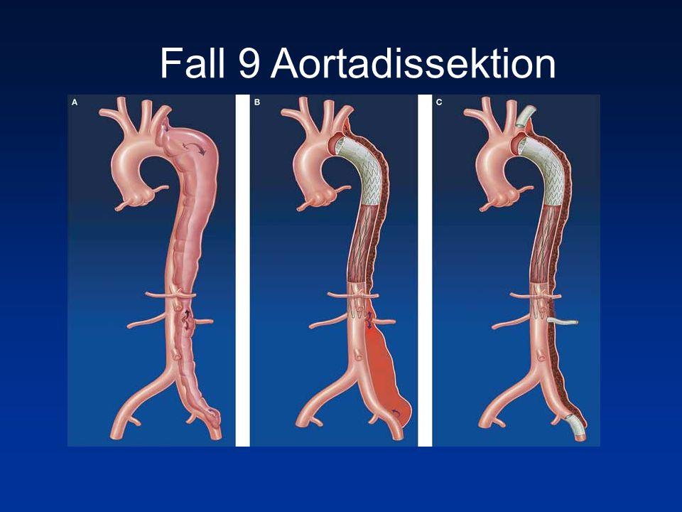 Fall 9 Aortadissektion