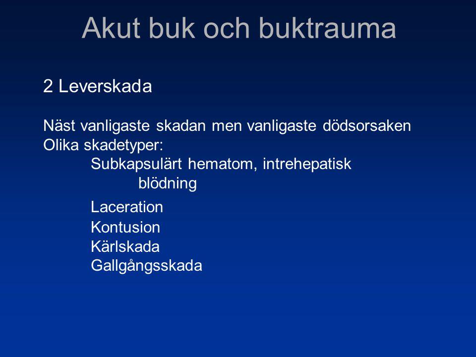 Akut buk och buktrauma 2 Leverskada Näst vanligaste skadan men vanligaste dödsorsaken Olika skadetyper: Subkapsulärt hematom, intrehepatisk blödning L
