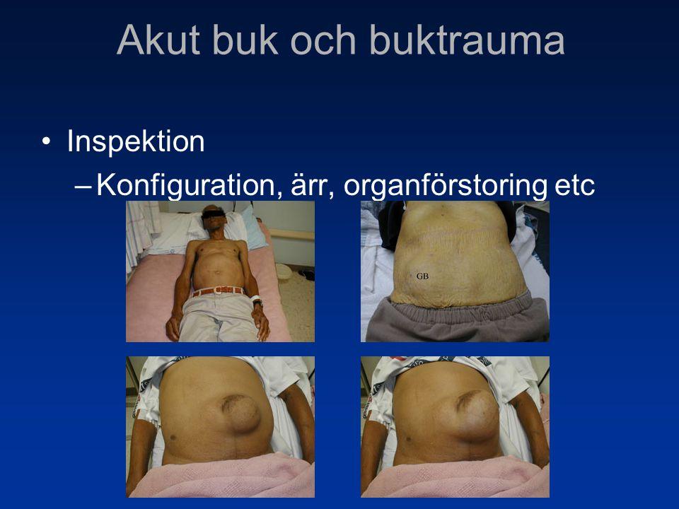 •Inspektion –Konfiguration, ärr, organförstoring etc Akut buk och buktrauma