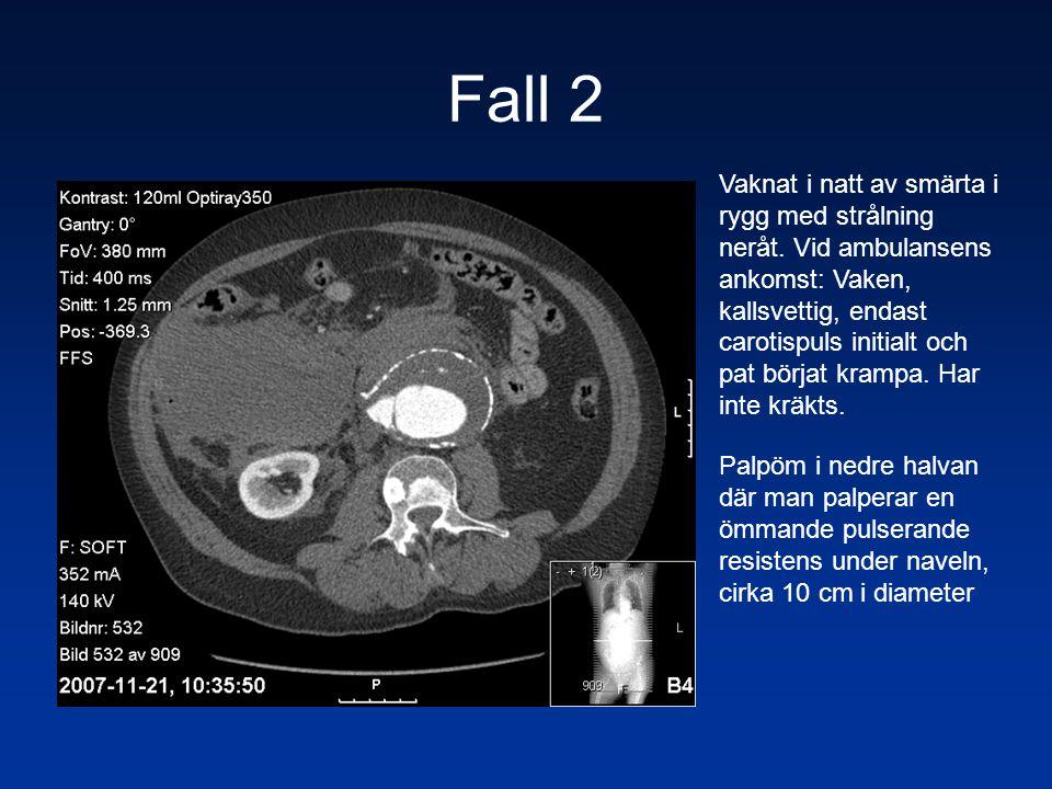 Fall 2 Vaknat i natt av smärta i rygg med strålning neråt. Vid ambulansens ankomst: Vaken, kallsvettig, endast carotispuls initialt och pat börjat kra