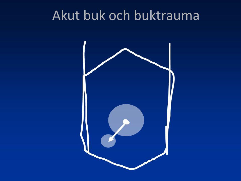 Akut buk •Anamnes •Status (vitalparametrar, AT, buk, c/p) •Hur sjuk är patienten.