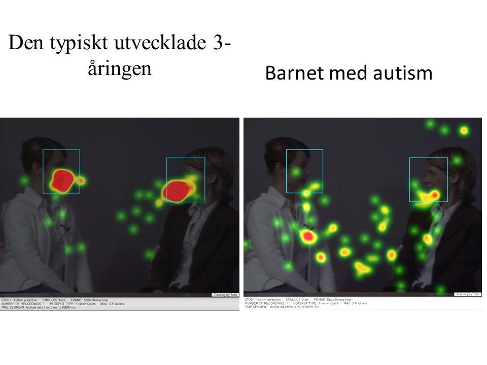 Den typiskt utvecklade 3- åringen Barnet med autism