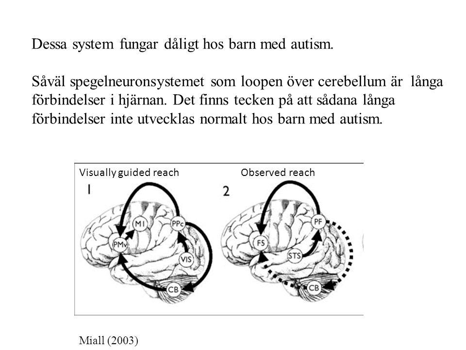 Dessa system fungar dåligt hos barn med autism. Såväl spegelneuronsystemet som loopen över cerebellum är långa förbindelser i hjärnan. Det finns tecke