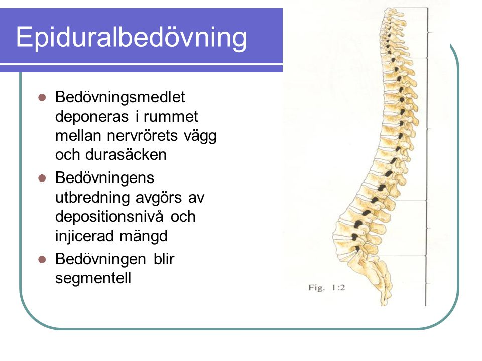Epiduralbedövning  Bedövningsmedlet deponeras i rummet mellan nervrörets vägg och durasäcken  Bedövningens utbredning avgörs av depositionsnivå och injicerad mängd  Bedövningen blir segmentell
