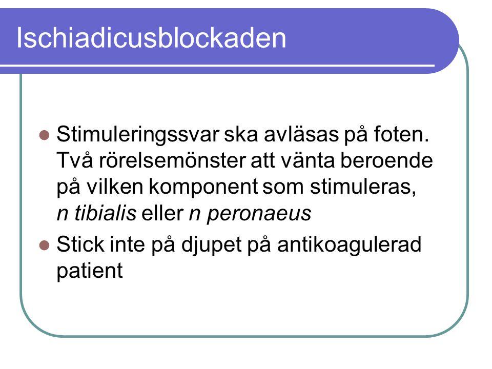 Ischiadicusblockaden  Stimuleringssvar ska avläsas på foten. Två rörelsemönster att vänta beroende på vilken komponent som stimuleras, n tibialis ell