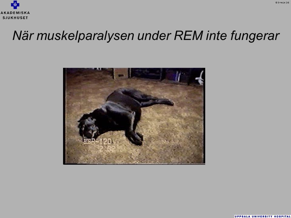 När muskelparalysen under REM inte fungerar © Smedje 2k5