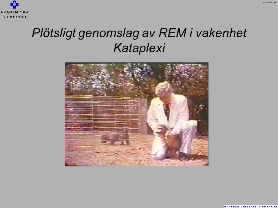 Plötsligt genomslag av REM i vakenhet Kataplexi © Smedje 2k5