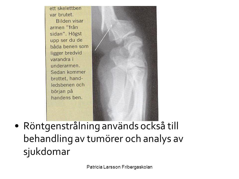 •Röntgenstrålning används också till behandling av tumörer och analys av sjukdomar Patricia Larsson Fribergaskolan