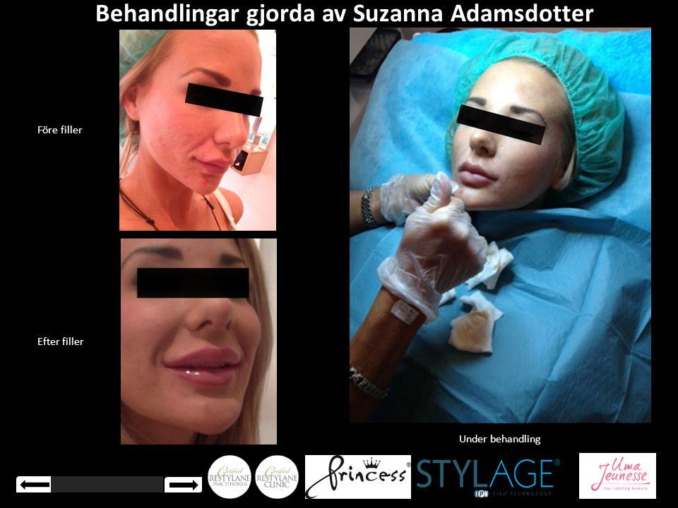 Efter filler Före filler Under behandling Behandlingar gjorda av Suzanna Adamsdotter