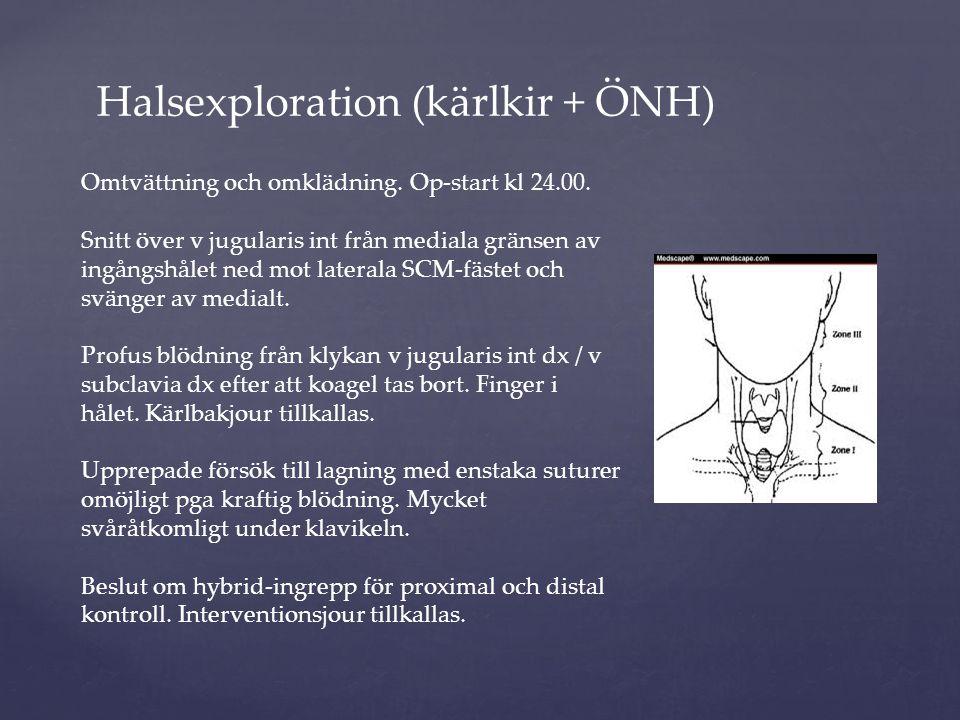 Halsexploration (kärlkir + ÖNH) Omtvättning och omklädning. Op-start kl 24.00. Snitt över v jugularis int från mediala gränsen av ingångshålet ned mot