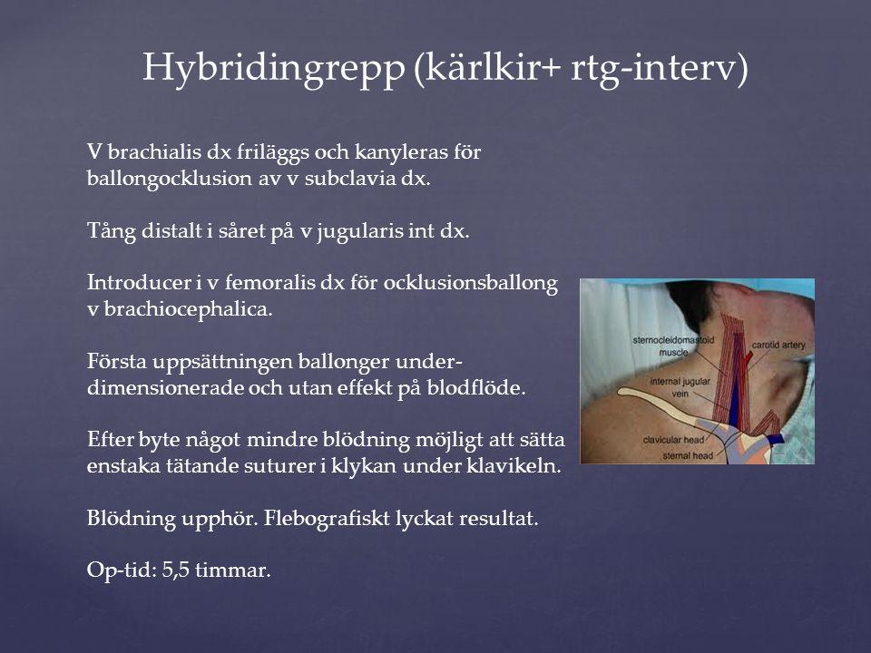 Hybridingrepp (kärlkir+ rtg-interv) V brachialis dx friläggs och kanyleras för ballongocklusion av v subclavia dx. Tång distalt i såret på v jugularis