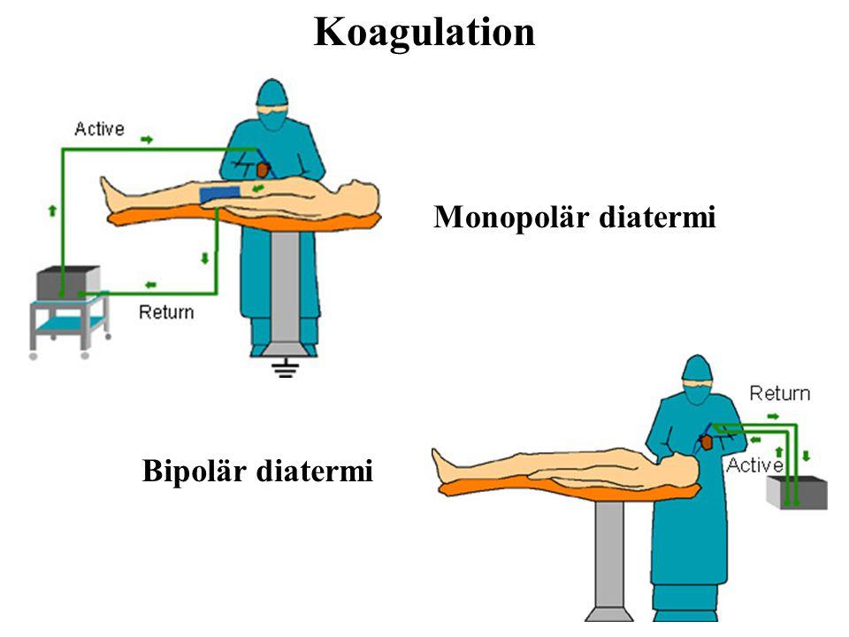 Monopolär diatermi Bipolär diatermi Koagulation