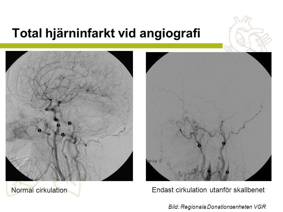 Normal cirkulation Endast cirkulation utanför skallbenet Total hjärninfarkt vid angiografi         Bild: Regionala Donationsenheten VGR