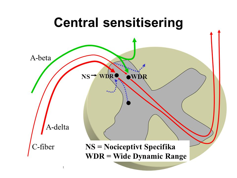 Central sensitisering A-delta C-fiber A-beta NSWDR NS = Nociceptivt Specifika WDR = Wide Dynamic Range WDR