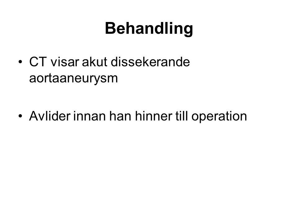 Behandling •CT visar akut dissekerande aortaaneurysm •Avlider innan han hinner till operation