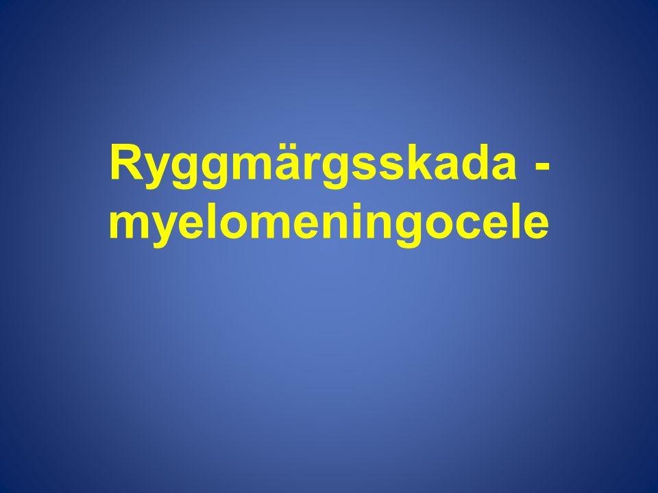 Ryggmärgsskada - myelomeningocele