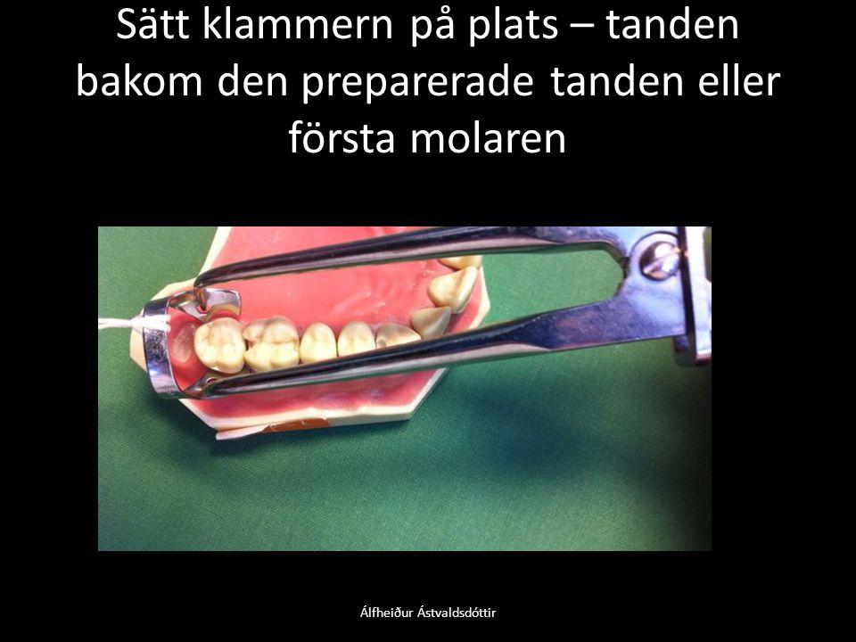 Sätt klammern på plats – tanden bakom den preparerade tanden eller första molaren Álfheiður Ástvaldsdóttir