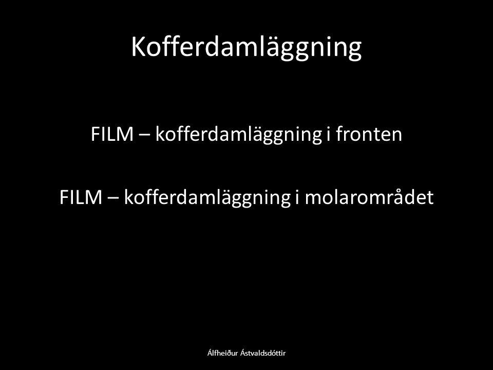 Kofferdamläggning FILM – kofferdamläggning i fronten FILM – kofferdamläggning i molarområdet Álfheiður Ástvaldsdóttir
