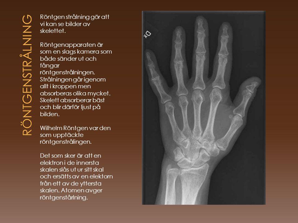 Röntgen strålning gör att vi kan se bilder av skelettet. Röntgenapparaten är som en slags kamera som både sänder ut och fångar röntgenstrålningen. Str