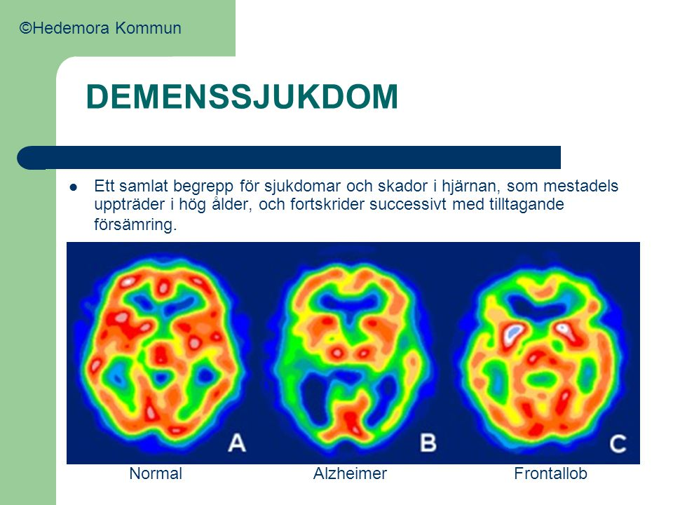 DEMENSSJUKDOM  Ett samlat begrepp för sjukdomar och skador i hjärnan, som mestadels uppträder i hög ålder, och fortskrider successivt med tilltagande