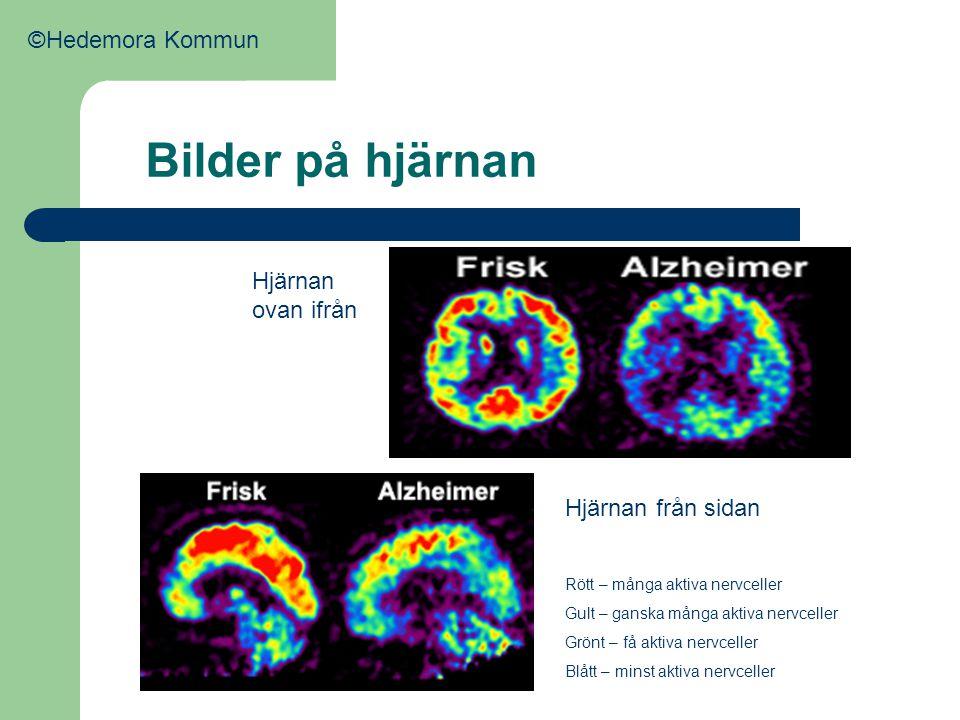 Bilder på hjärnan Hjärnan ovan ifrån Hjärnan från sidan Rött – många aktiva nervceller Gult – ganska många aktiva nervceller Grönt – få aktiva nervcel