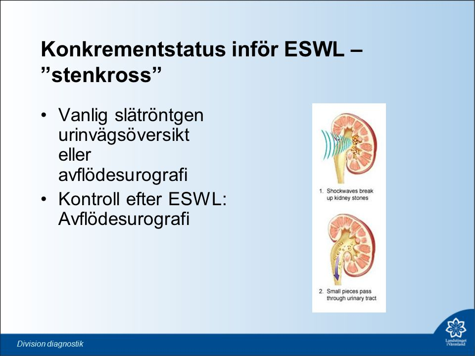 """Division diagnostik Konkrementstatus inför ESWL – """"stenkross"""" •Vanlig slätröntgen urinvägsöversikt eller avflödesurografi •Kontroll efter ESWL: Avflöd"""