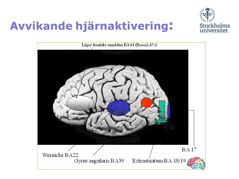 Avvikande hjärnaktivering :