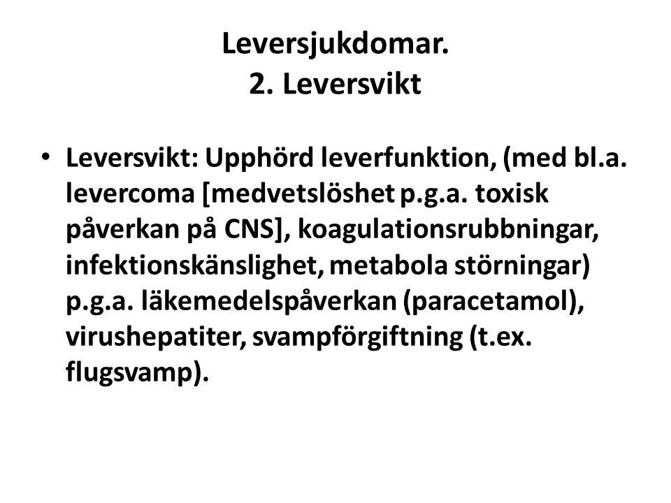 Leversjukdomar. 2. Leversvikt • Leversvikt: Upphörd leverfunktion, (med bl.a. levercoma [medvetslöshet p.g.a. toxisk påverkan på CNS], koagulationsrub